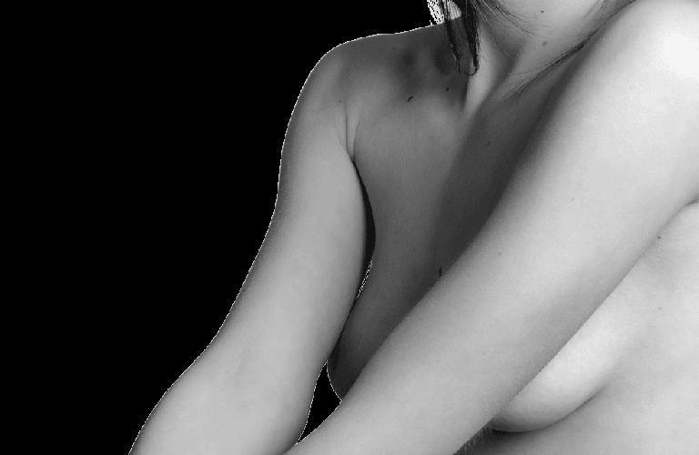 cirugia mamoplastia